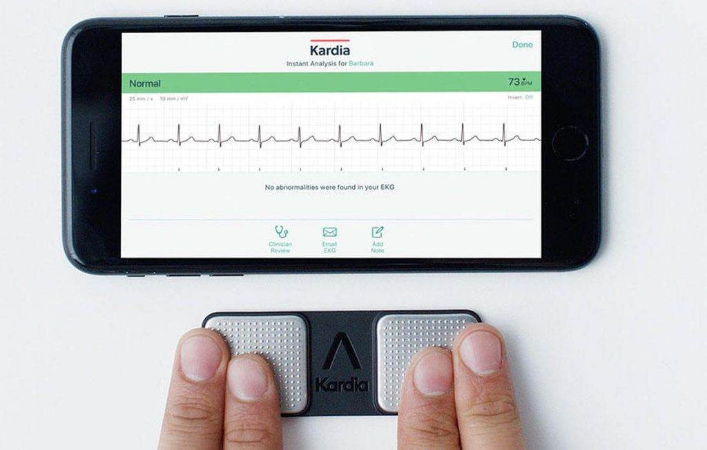 AliveCor portable EKG